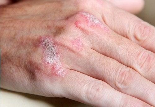 Maladies auto-immunes : 5 choses à savoir