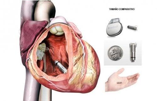 pacemaker micra dans le coeur