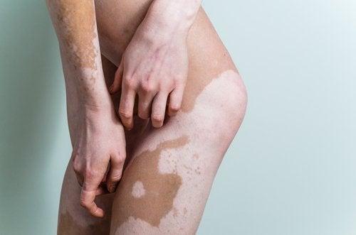 vitiligo-500x331