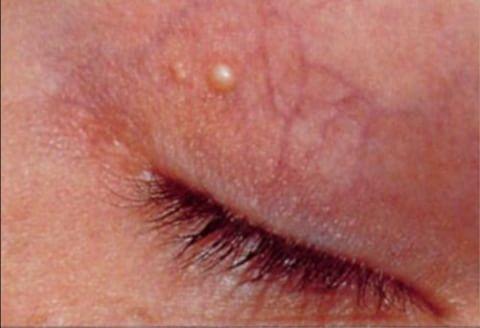 traitement des xanthélasmas par le laser