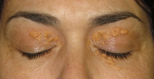 maquillage xanthelasma