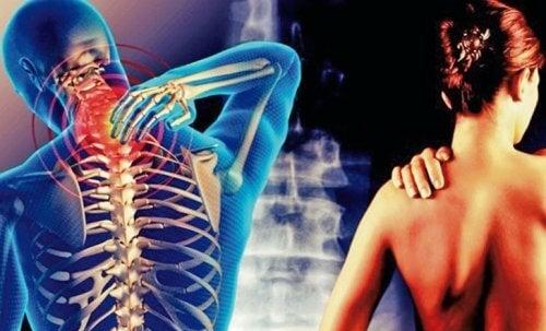 La cervicobrachialgie : cette douleur qui part du cou jusqu'au bras