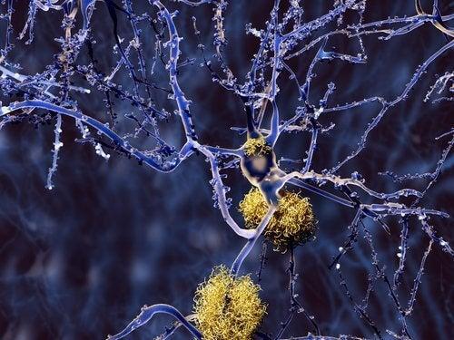 Propriétés du curcuma contre les troubles neurologiques