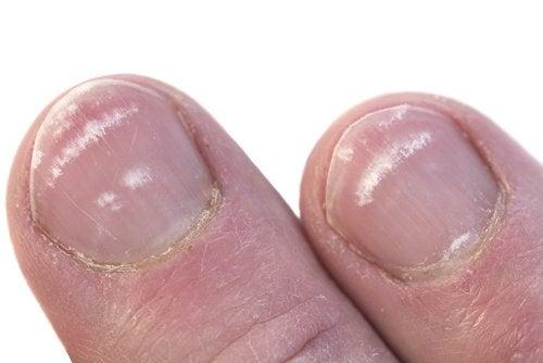 Pourquoi des marques blanches apparaissent sur les ongles ?