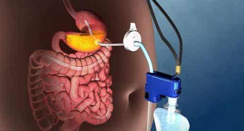 Découvrez la nouvelle technique pour traiter l'obésité grave sans chirurgie