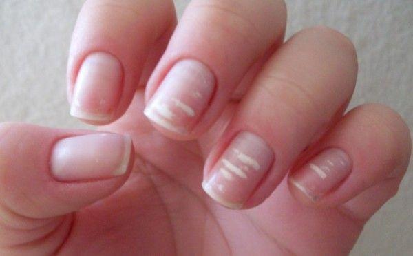 Les marques blanches sur les ongles.