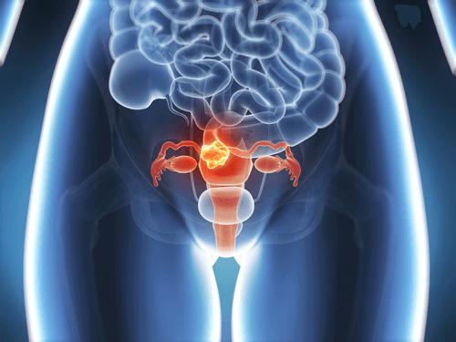les fibromes utérins