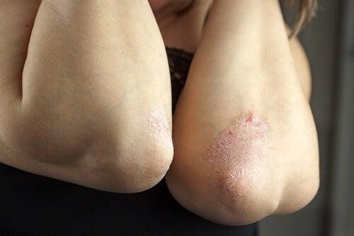 Problemes de peau