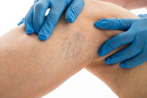 Comment soulager les douleurs causées par les varices