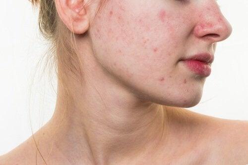 5 habitudes alimentaires qui peuvent abîmer la peau du visage