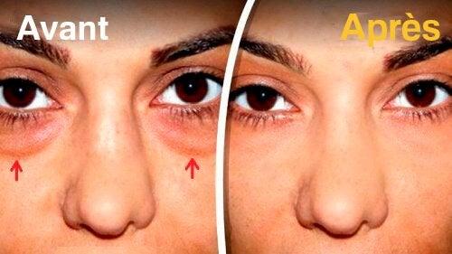 Comment atténuer les poches sous les yeux
