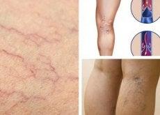 4-remedes-pour-diminuer-varices-et-araignees-vasculaires-500x307