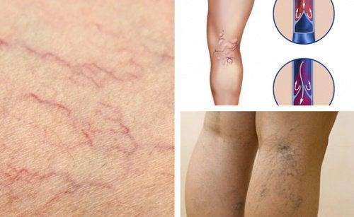 6 changements pour profiter d'une meilleure santé vasculaire dans les jambes