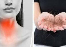 8-choses-pour-lutter-contre-la-chute-des-cheveux-a-cause-de-la-thyroide-500x292