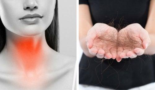 8 choses à faire pour lutter contre la chute des cheveux à cause de la thyroïde