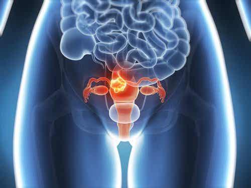 6 symptômes du cancer du col de l'utérus à connaître