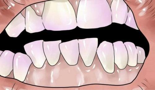 Comment éliminer naturellement le tartre des dents ?