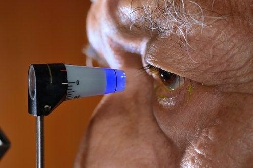 Comment prévenir naturellement le glaucome
