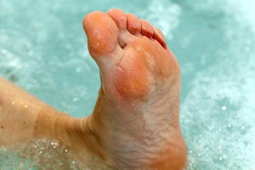 Comment traiter le pied d'athlète