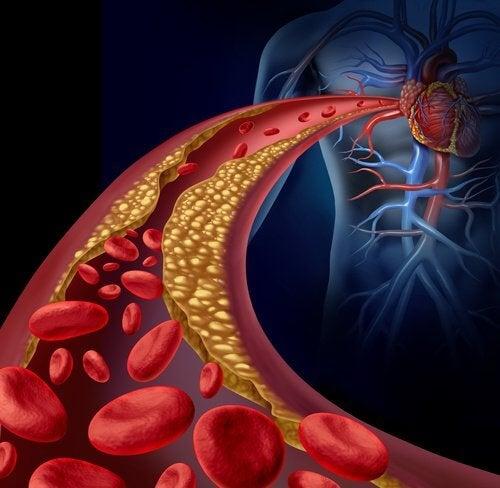 Nouveau médicament pour lutter contre le cholestérol.