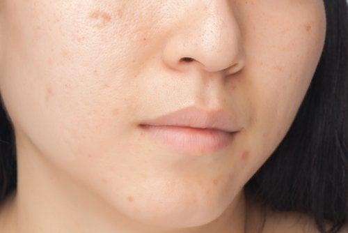 7 habitudes alimentaires qui abîment votre visage