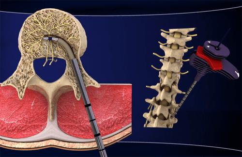 Découvrez le nouveau traitement de la lombalgie chronique