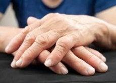 nouvelle-forme-de-traiter-l-arthrite500x333