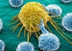 cellule-de-cancer-1-500x282