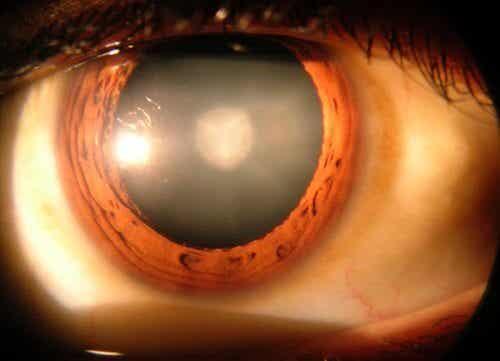 8 choses à savoir sur la cataracte