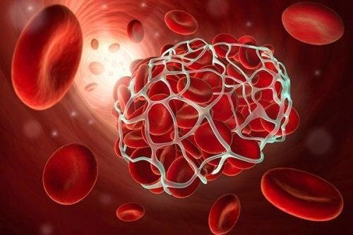 9 aliments qui préviennent la thrombose et l'embolie