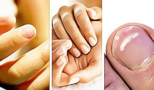 5 signes de mauvaise santé visibles sur les ongles