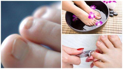7 choses à savoir sur les mycoses des ongles