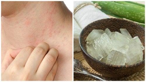 7 solutions pour soulager l'allergie à la chaleur
