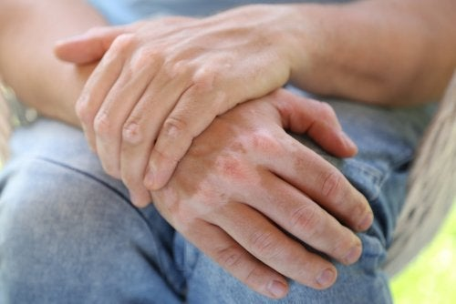 9 remèdes naturels contre le vitiligo