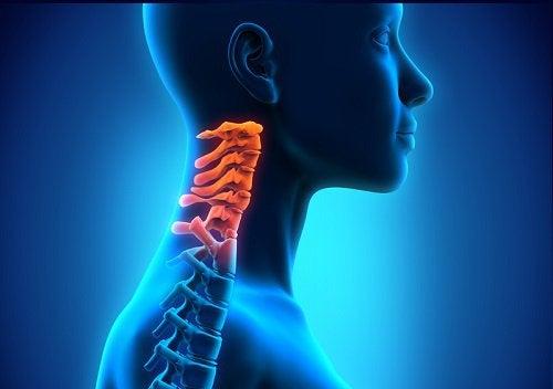 La spondylose cervicale est une forme d'arthrite.