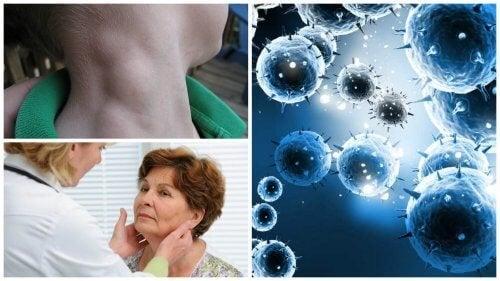 Le lymphome, un cancer silencieux qui peut être traité avec succès s'il est détecté à temps