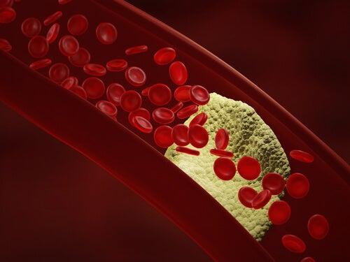 L'insuffisance cardiaque peut être déclenchée par une maladie des artères coronaires.