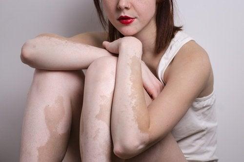 Le vitiligo, ou leucodermie, est une maladie assez fréquente.