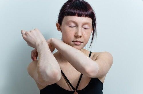 Les remèdes naturels contre le vitiligo peuvent s'avérer efficaces.