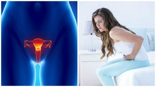 7 données importantes à connaître sur le cancer de l'ovaire