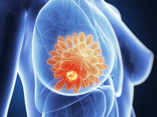La viande grillée et le cancer du sein : un plus grand risque ?