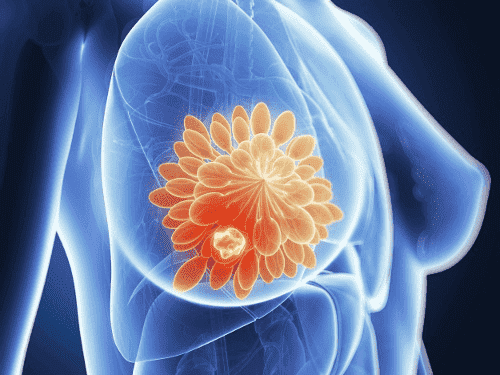 Une avancée décisive dans le dépistage du cancer du sein