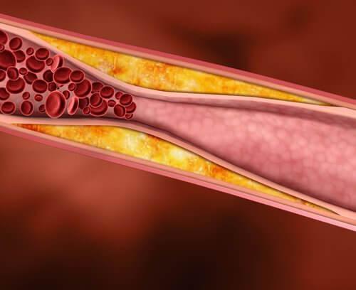 l'écorce d'orange provient le cholestérol