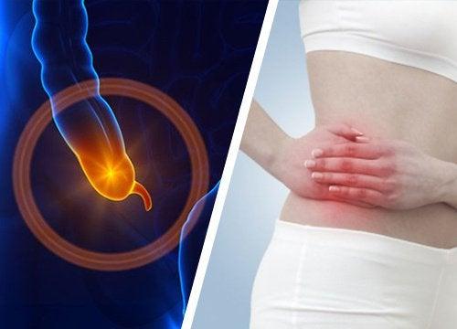 Un appendice enflammé : 7 symptômes