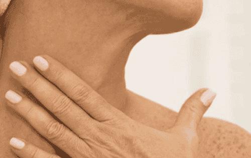 5 remèdes naturels pour éliminer les rides du cou