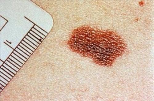 Signes de cancer de la peau à ne pas négliger