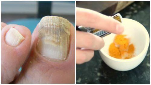 Combattez les mycoses des ongles avec un traitement naturel au curcuma