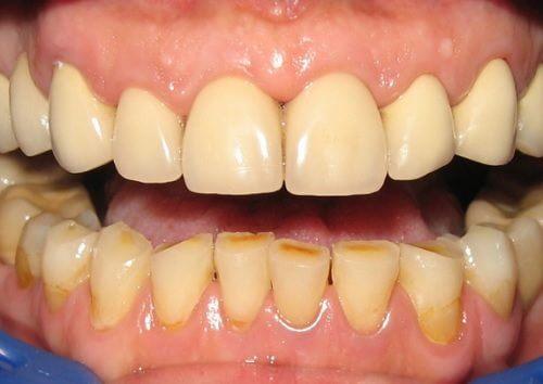 Les effets négatifs sur la dentition