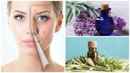 Nettoyez votre visage de l'acné avec ces 6 merveilleuses huiles essentielles