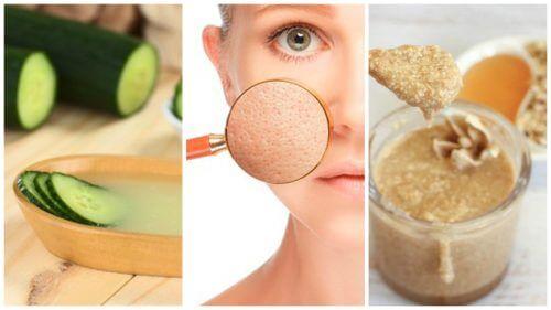 Scellez les pores dilatés de votre peau avec ces 5 remèdes naturels